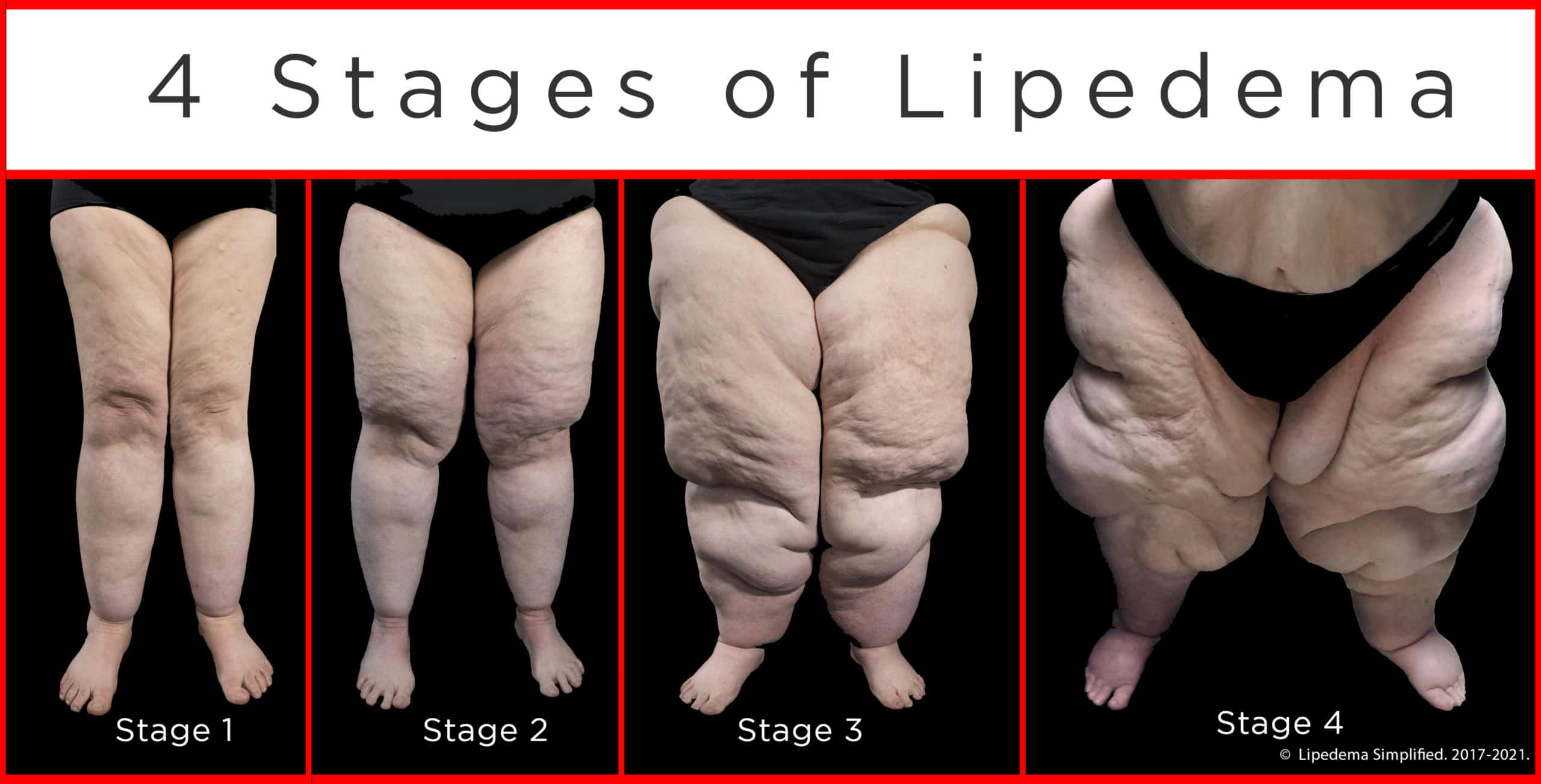4 stages of lipedema